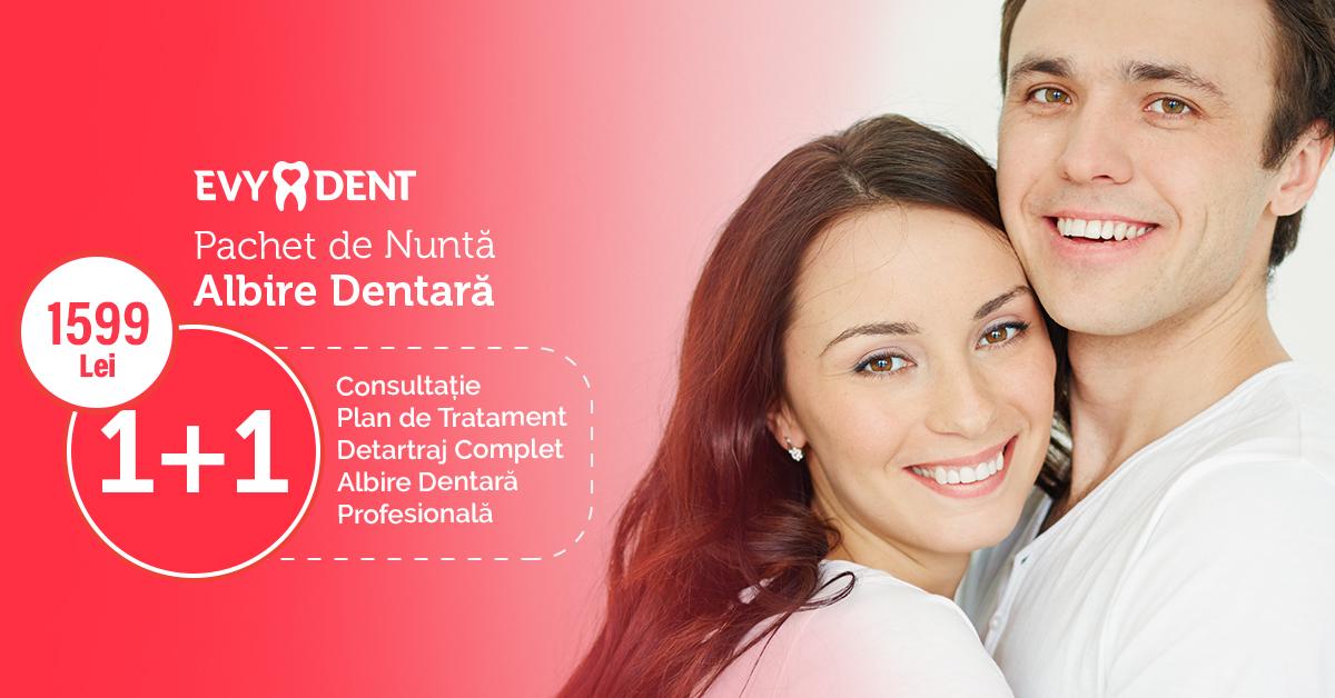 40-reducere-pachet-de-nunta-albire-dentara-clinica-stomatologica-evydent